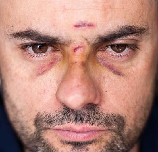 J'ai une poque dans le front parce que j'ai reçu un puck dans la face.