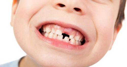 Un enfant sourit afin de monter qu il lui manque une palette. En québécois, le mot palette signifie aussi incisive avant.,